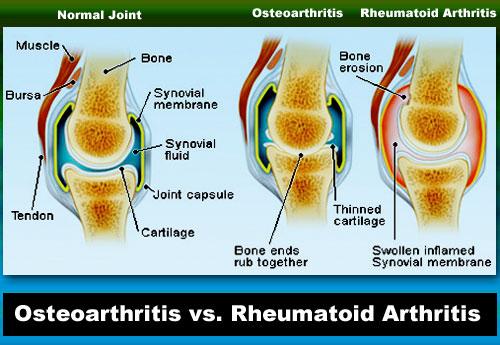 Osteoarthritis vs. Rheumatoid Arthritis Diagram Infographic