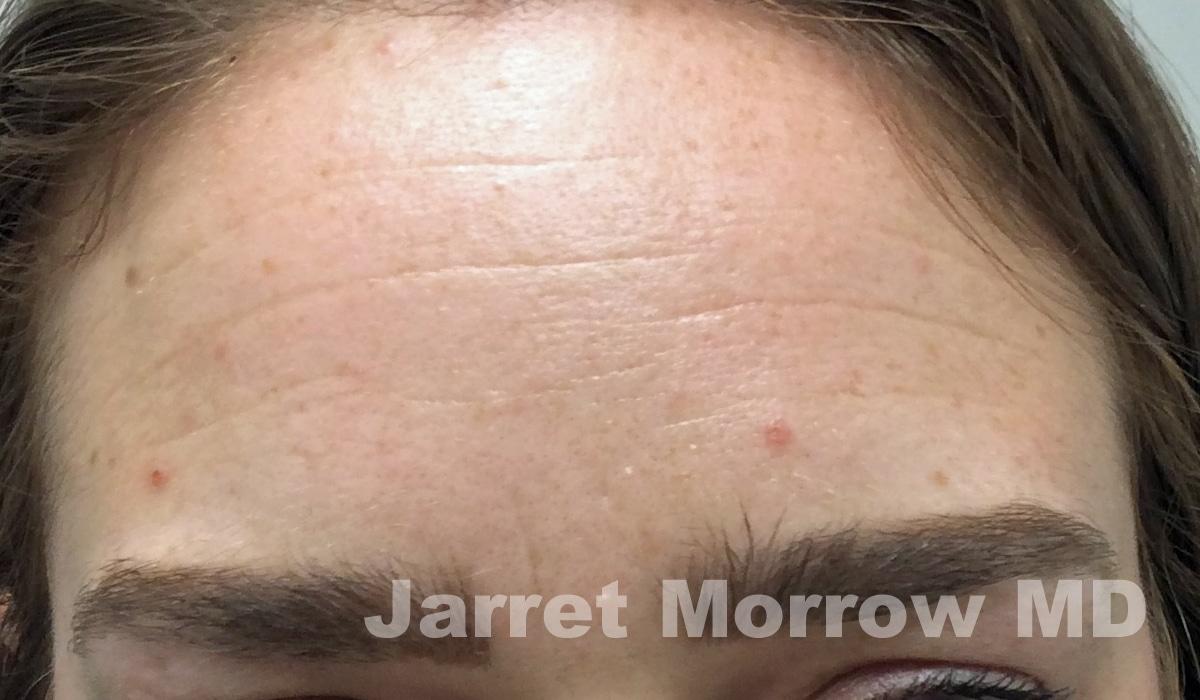 Before Botox forehead