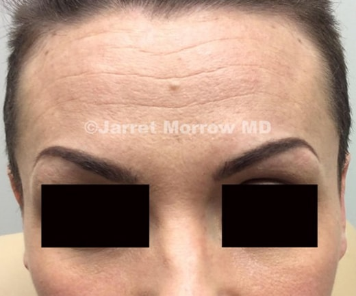 Dysport forehead before treatment