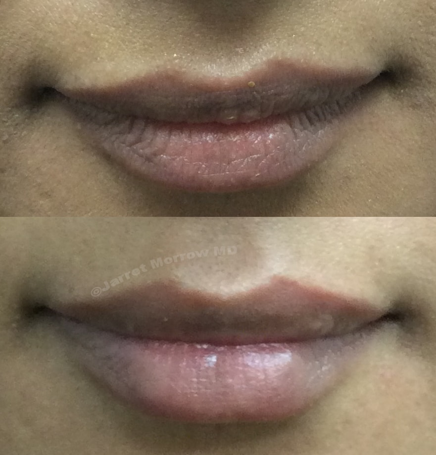 0.5 cc Restylane Kysse Lip filler before and after photo