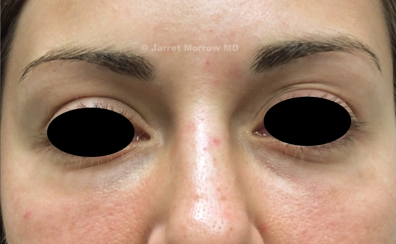 Restylane skin boosters after