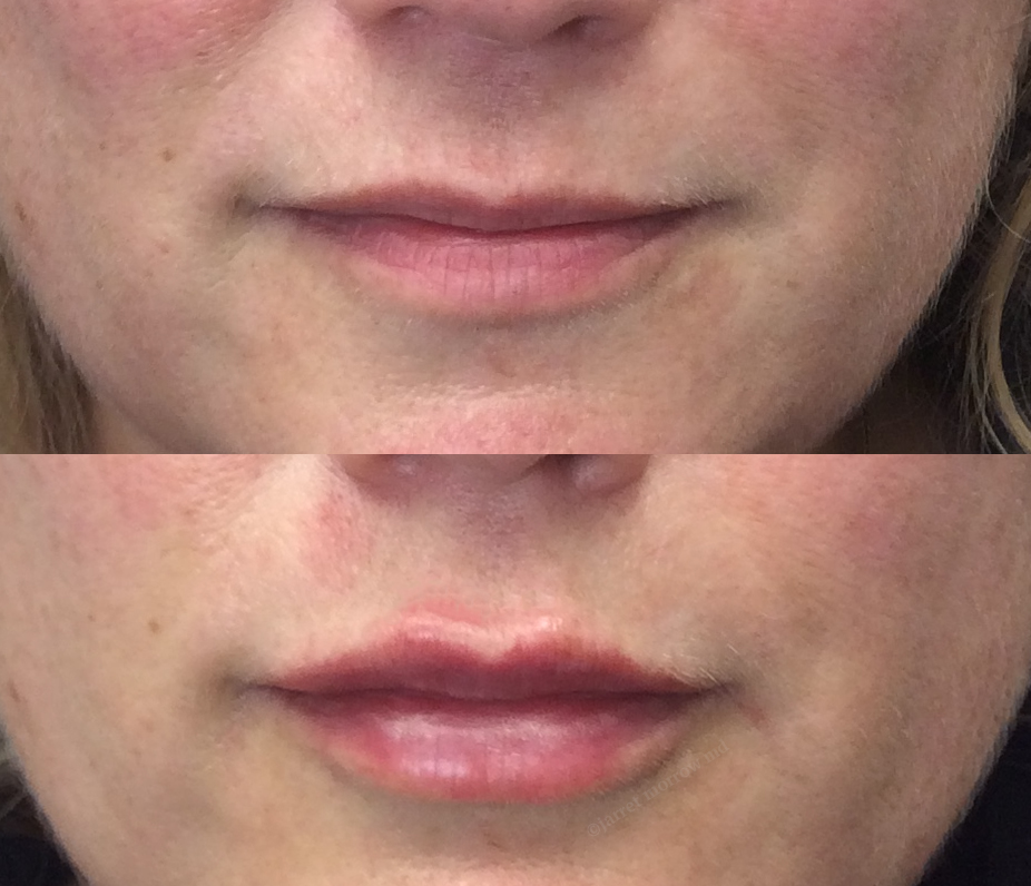 Restylane Kysse lips Before and After
