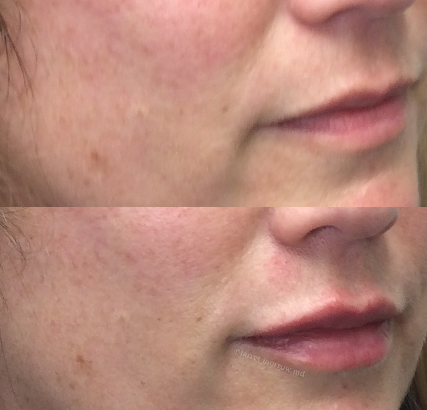 Restylane Kiss side before and after